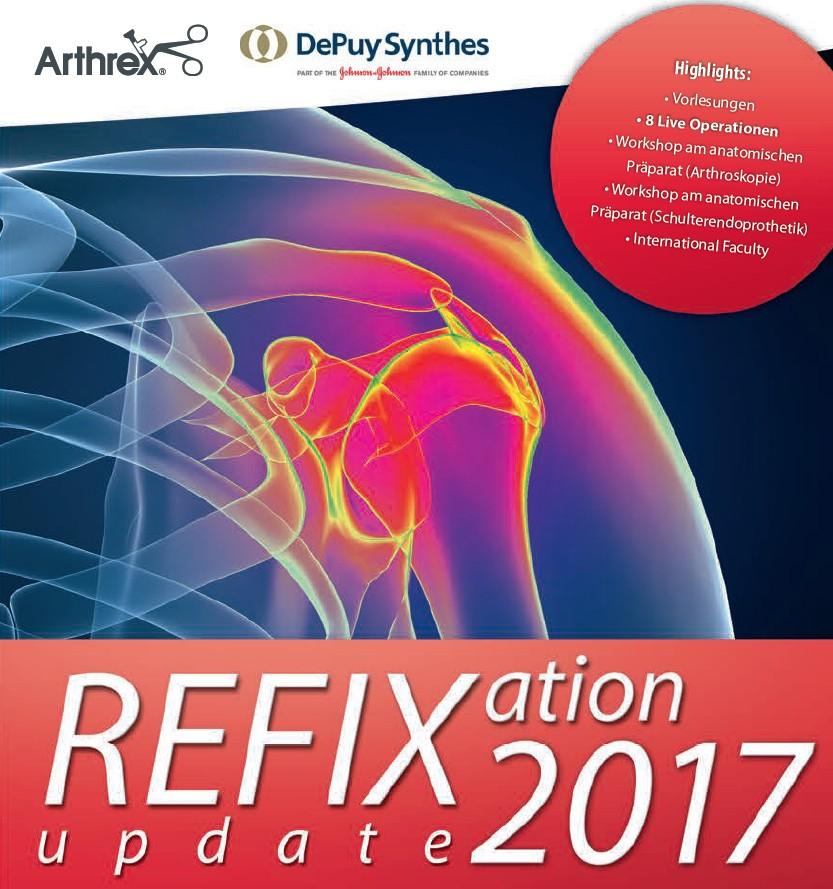 Refixation Update 2017 Titel