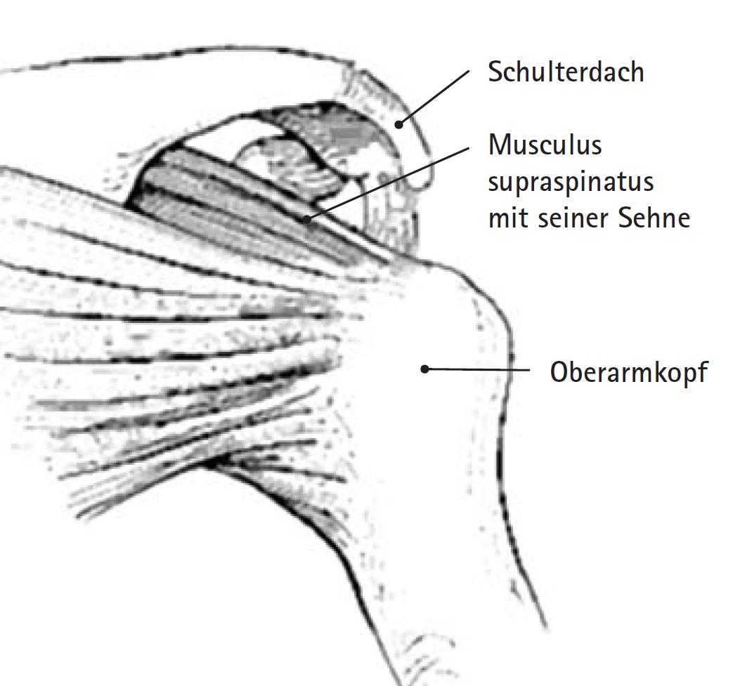 Arthroskopische Schultereingriffe - Deutsches Schulterzentrum