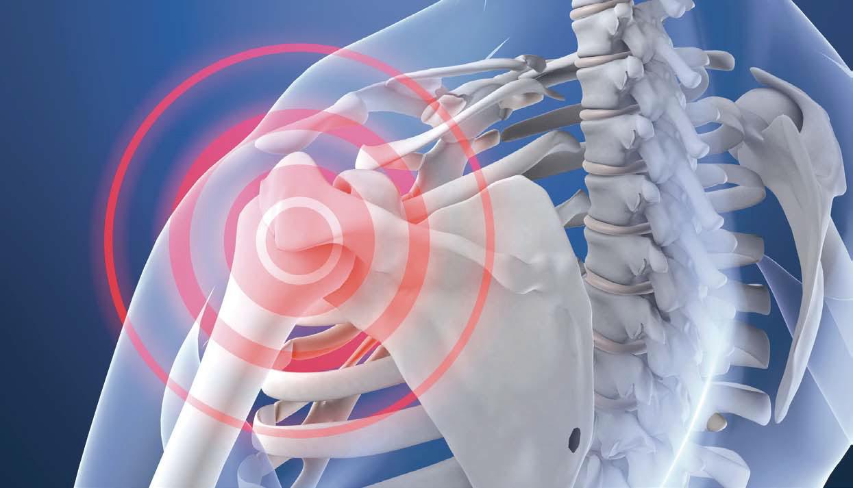 Arthroskopische Schultereingriffe